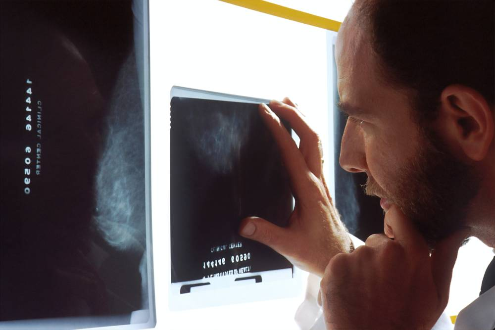 liečba zápalu bedrového kĺbov